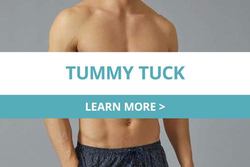 Tummy Tuck MEn
