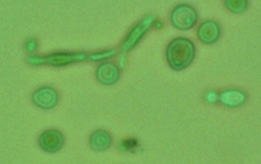 Brettanomyces strain used for primary fermentation. Notice the Brett polymorphism (cells are all different shapes)