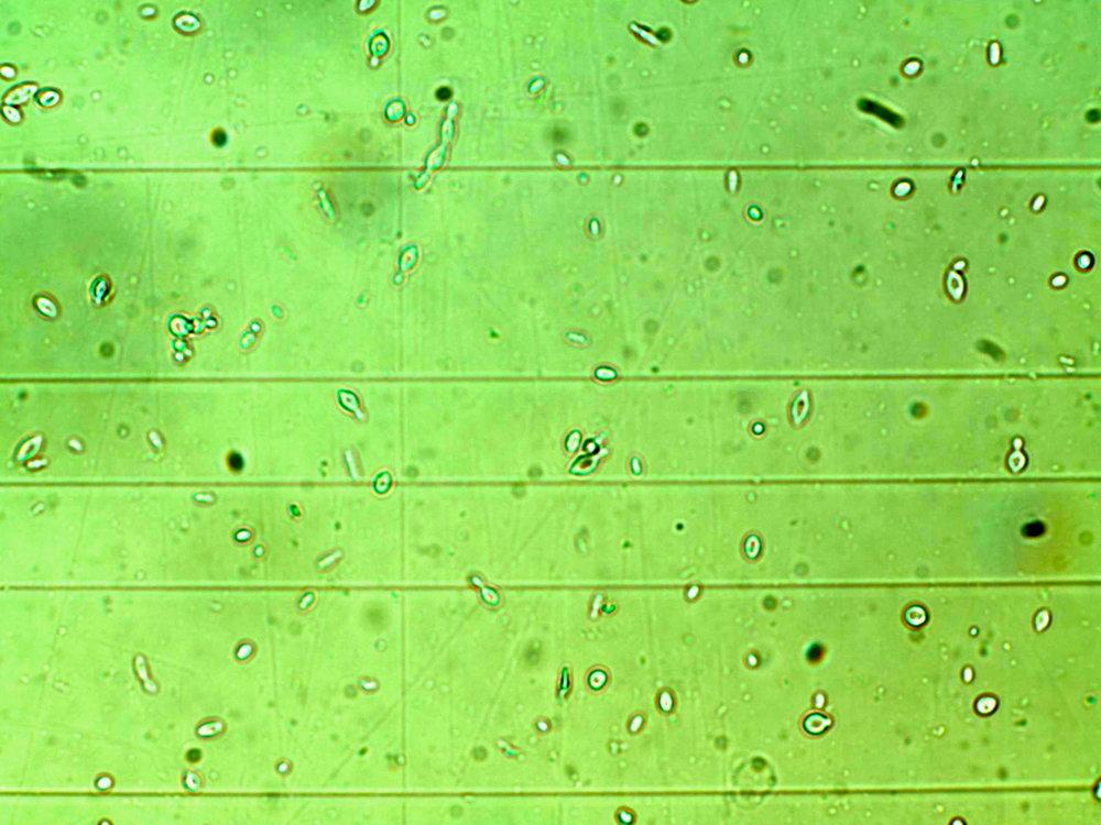 Des microbes exotiques provenant de jus de pommes Colapuy (non lavé, non pasteurisé) y compris des levures Kloekera et peut-etre des élements non levuriformes?