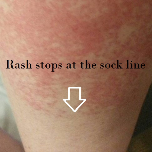 Skin Rash: 59 Pictures, Causes, Treatments - Healthline