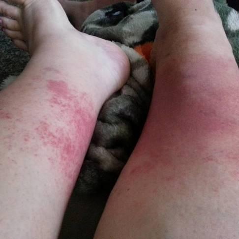 Epcot-rash(Angela Ketchersid).jpg