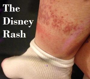 The Disney Rash Build A Better Mouse Trip