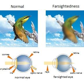 Hypermetropia ingles.jpg
