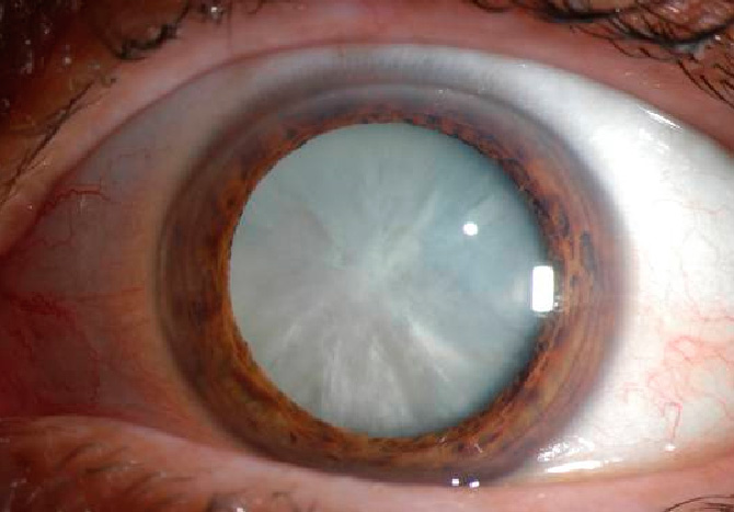 This is an example of an extremely dense cataract. They almost never get this bad in Canada as people usually seek treatment before their vision is this bad.