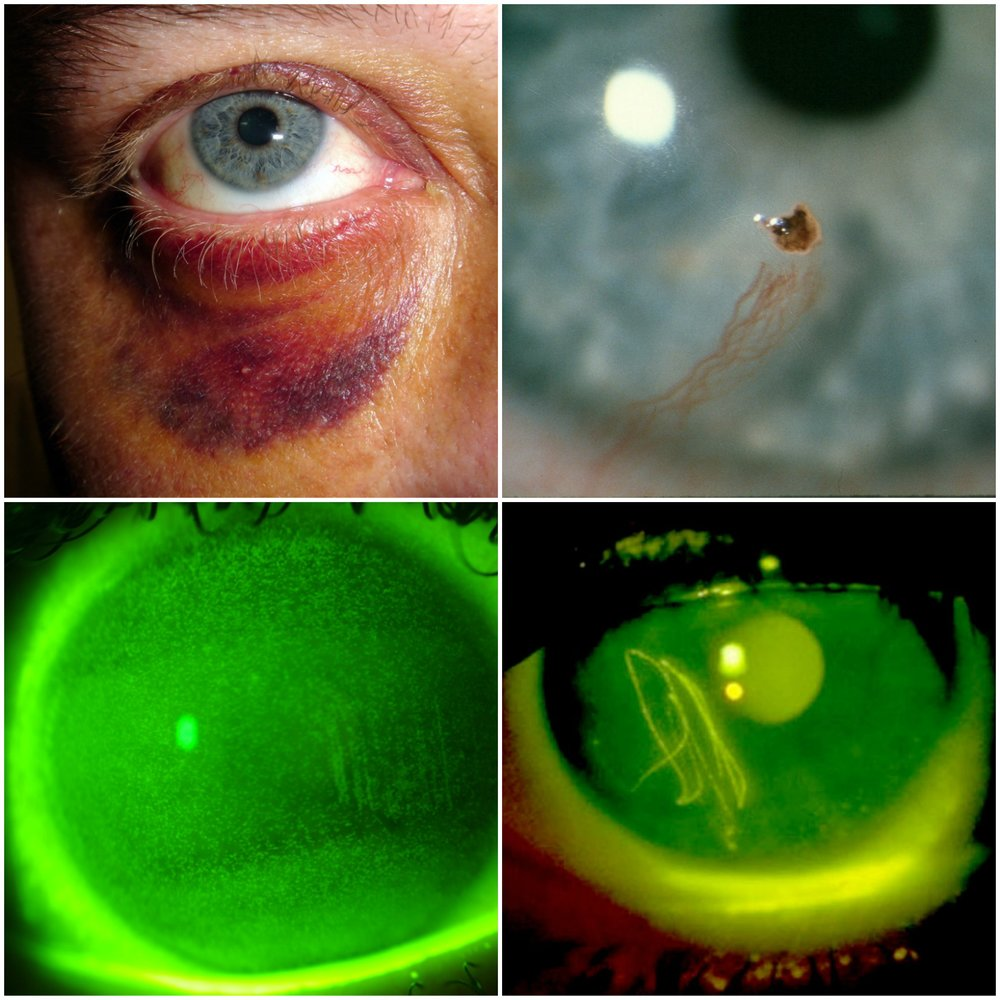 Eye injuries are no fun at all.  Top left: Black eye; Top right: Metallic object in eye; Bottom left: Chemical burn; Bottom right: Scratched eye