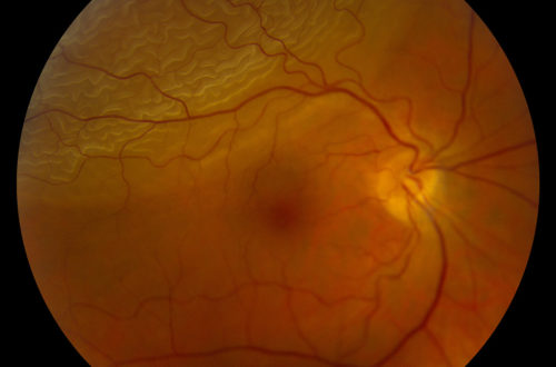 This is what a detached retina looks like when your doctor looks inside your eye. It's not something we want to see!
