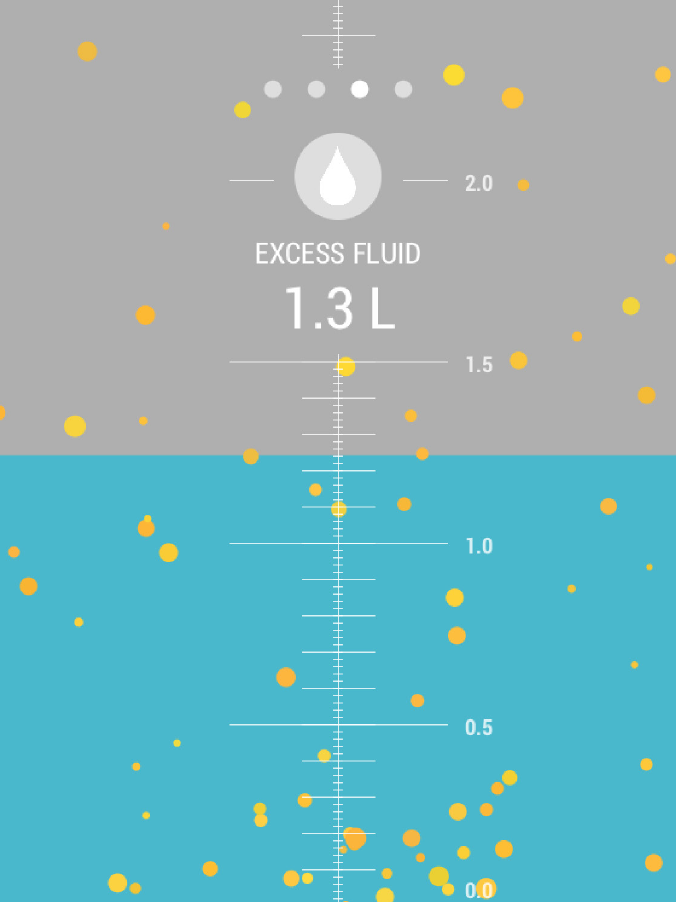 Fluid Volume: Dialysis treatment removes excess fluid that has accumulated in the body. The blue background area represents the volume of excess fluid remaining. The fluid level starts the top of the screen, and gradually drains to the bottom by the end of the session.