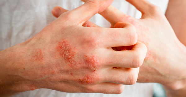 Eczema-FBMeme.png
