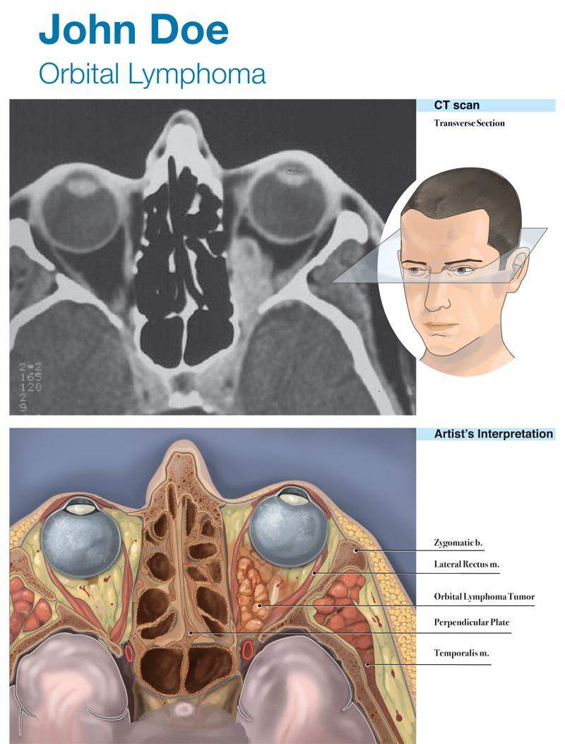 Orbital Lymphoma