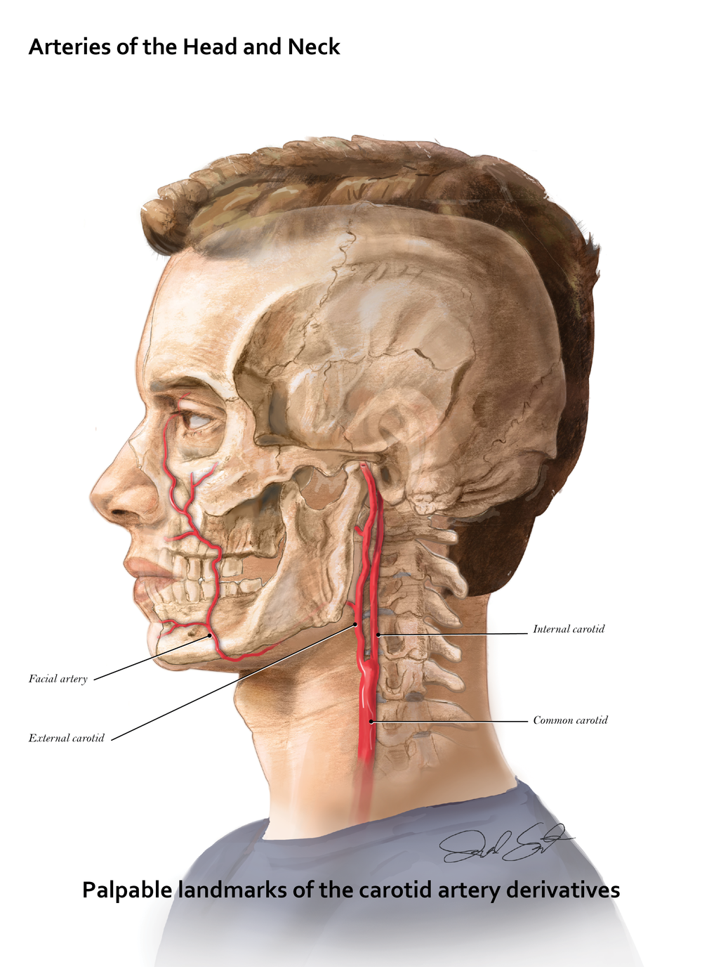 Arteries of the Head and Neck