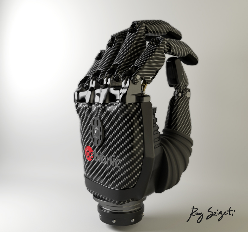 Bebionic Hand by RSL Steeper