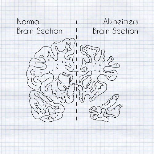 The size difference is due to a massive loss of neurons, mainly from the cerebrum region of the brain