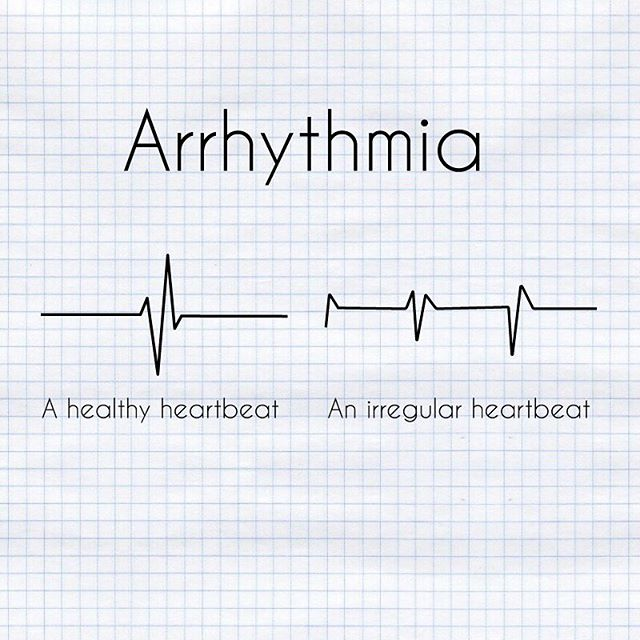 Arrythmia is defined as any irregular heartbeats. It can be caused by anything from anxiety to heart disease. The test involves a machine called an ECG which measures the electrical impulses in the cardiac tissue. #arrythmia #heartdisease #ecg