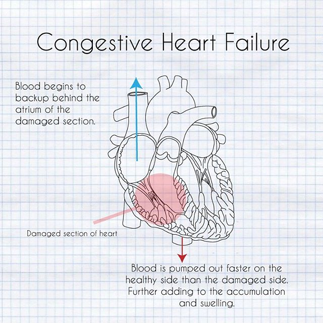 What is congestive heart failure? When the heart can't pump enough blood out as it gets in, blood will begin to accumulate behind it. This can cause fluid accumulation in the lungs or elsewhere in the body. #chf #congestiveheartfailure #cardio