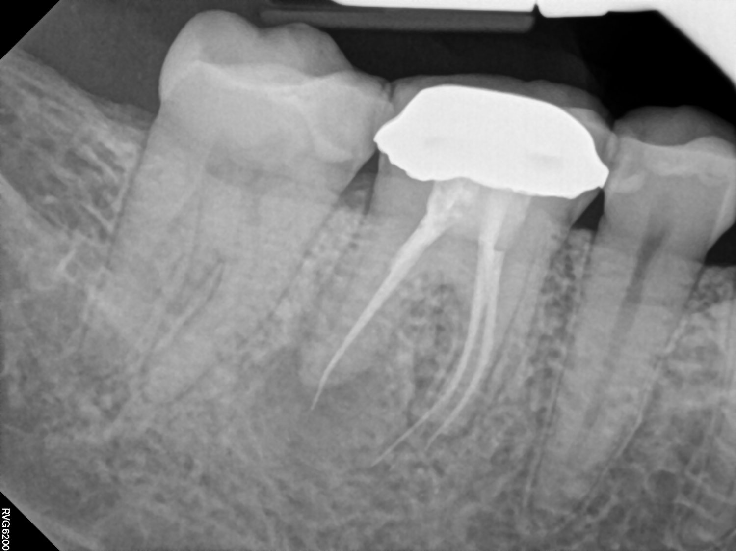 The Bad Side Of Root Canals: Making An Informed Decision
