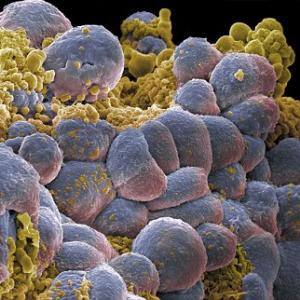 tumour cells.jpg