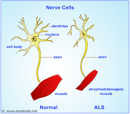 Neuwrite West New In Neuroscience Understanding Als