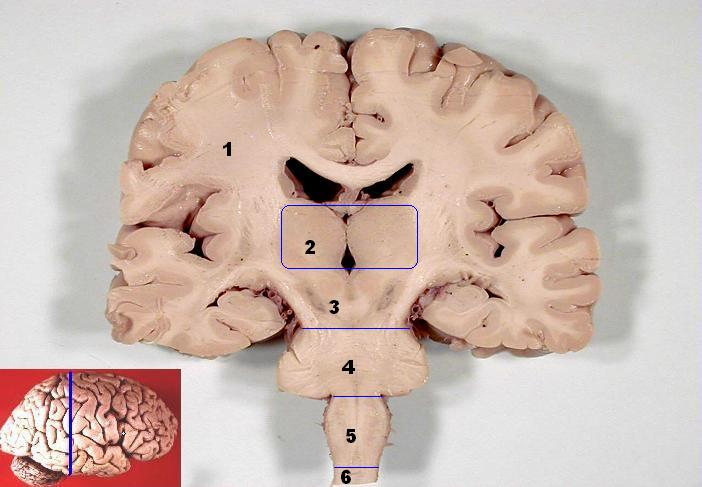 Human brain frontal (coronal) section. Can you spot the substantia nigra? Hint: it's 2 (bilateral) regions that are substantially darker than the tissue that surrounds them.