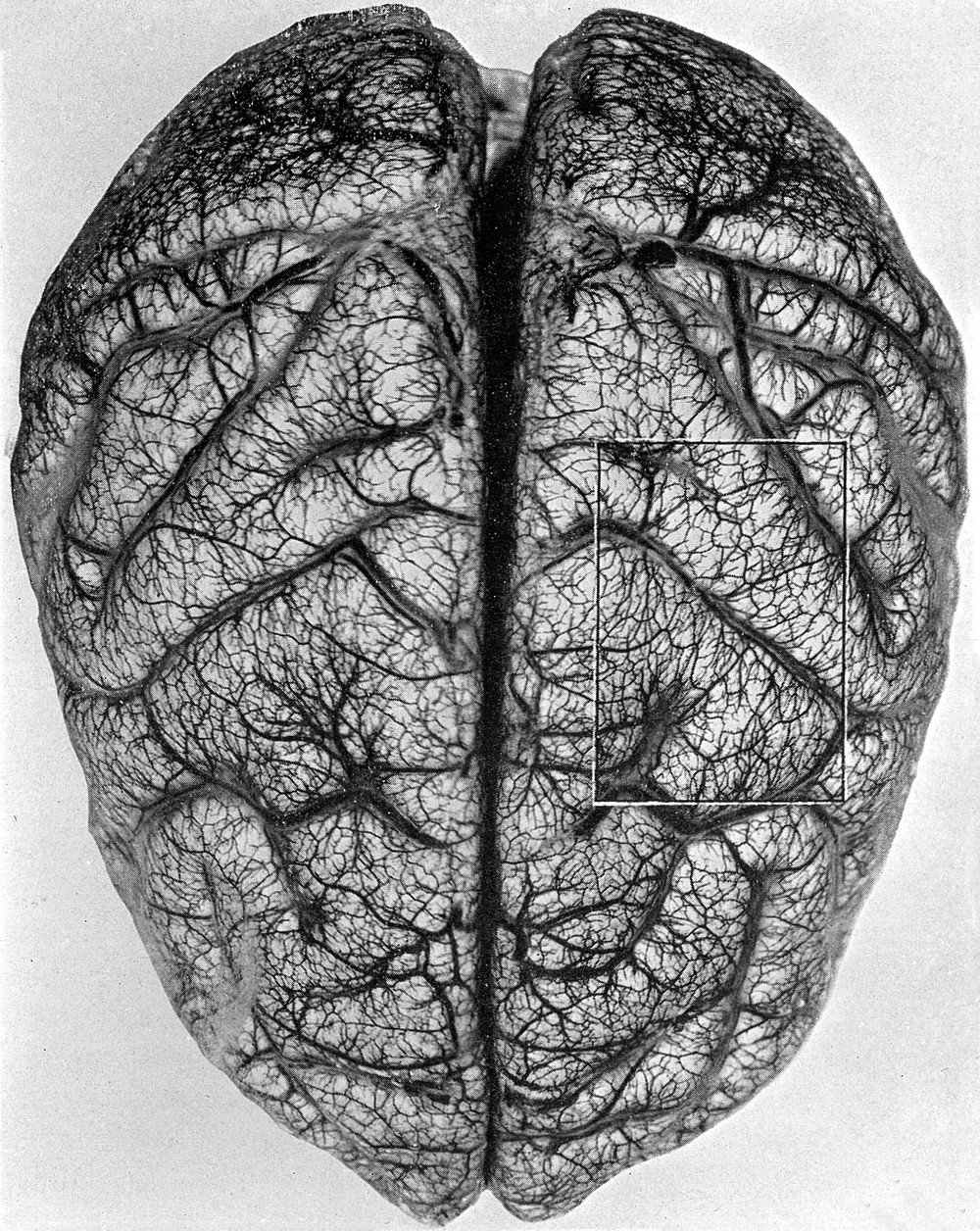 The arteries and veins of the brain, via  Wikimedia Commons.