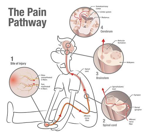 Neuwrite west pain in the brain normal 0 false false false en us ja x none style definitions ccuart Image collections