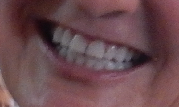 My teeth.