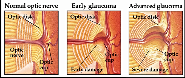 glaucoma_pics.png