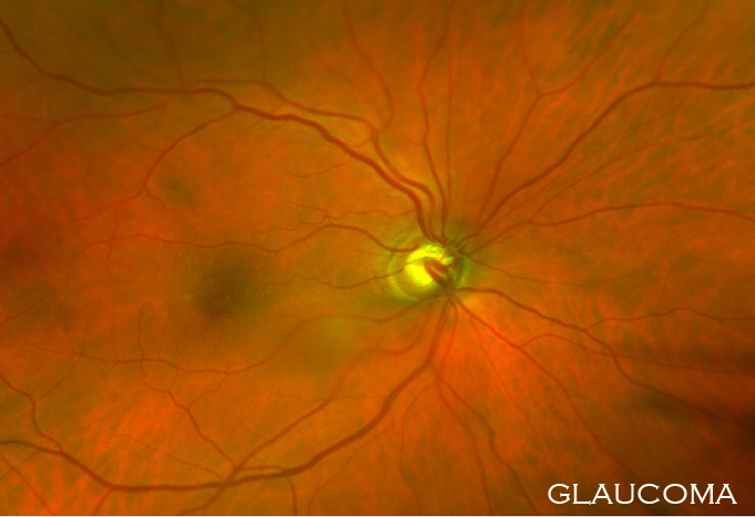 Glaucoma2.jpg
