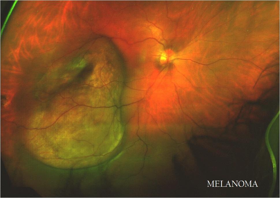 Melanoma1.jpg