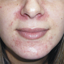 Runny nose and Skin rash: Common Related Medical Conditions