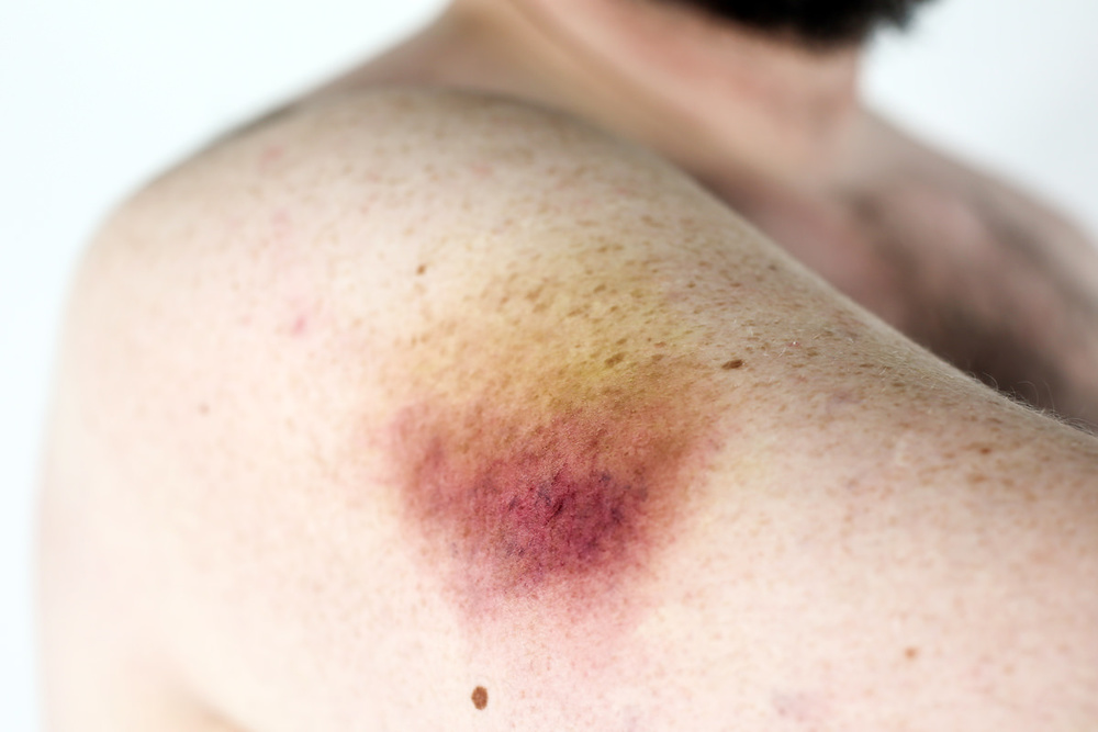 arms-bruise.jpg