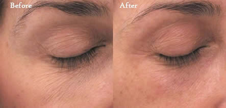 e-Matrix eye lift / two treatments