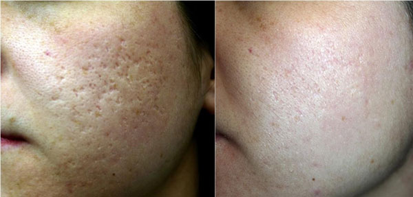 e-Matrix acne scar correction / three treatments