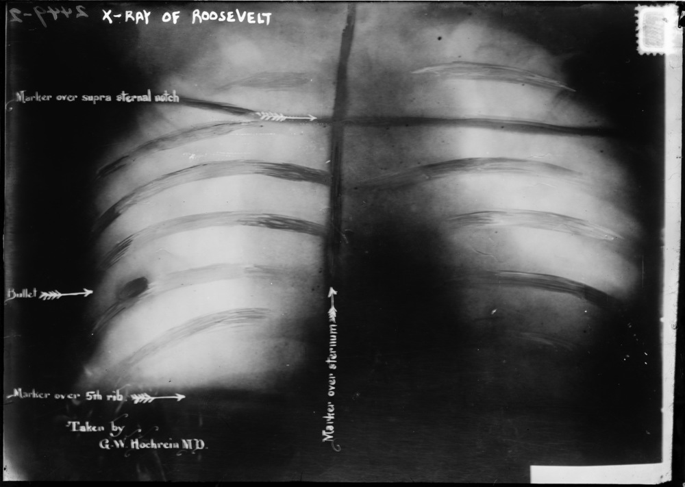 X-ray of Roosevelt's ribs with embedded bullet