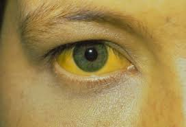 A sickly yellow.....human skin tone and eyes.