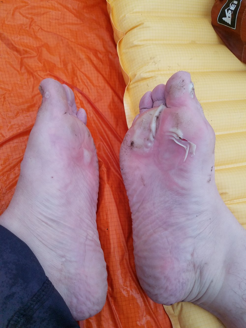 Yeah, I walked on those for awhile. And this photo was before the REAL infection...