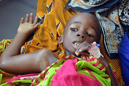 Asha was diagnosed with Burkitt's Lymphoma at Muhimbili National Hospital in Tanzania.  (Josephat Mugunda/IMA World Health)