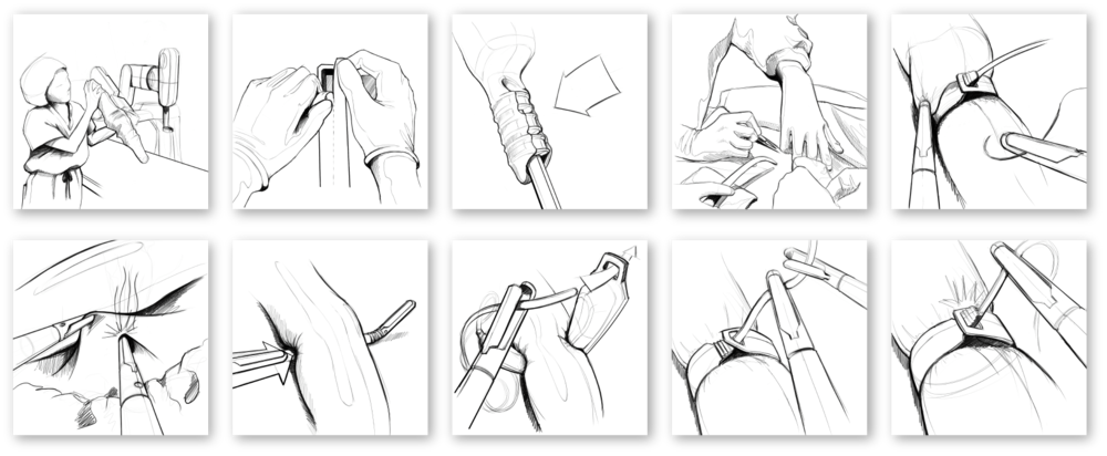 Our team uses observational research methods, including contextual inquiry & storyboards to illustrate surgical procedures, such as this gastric bypass, to look for opportunities to enhance device safety.