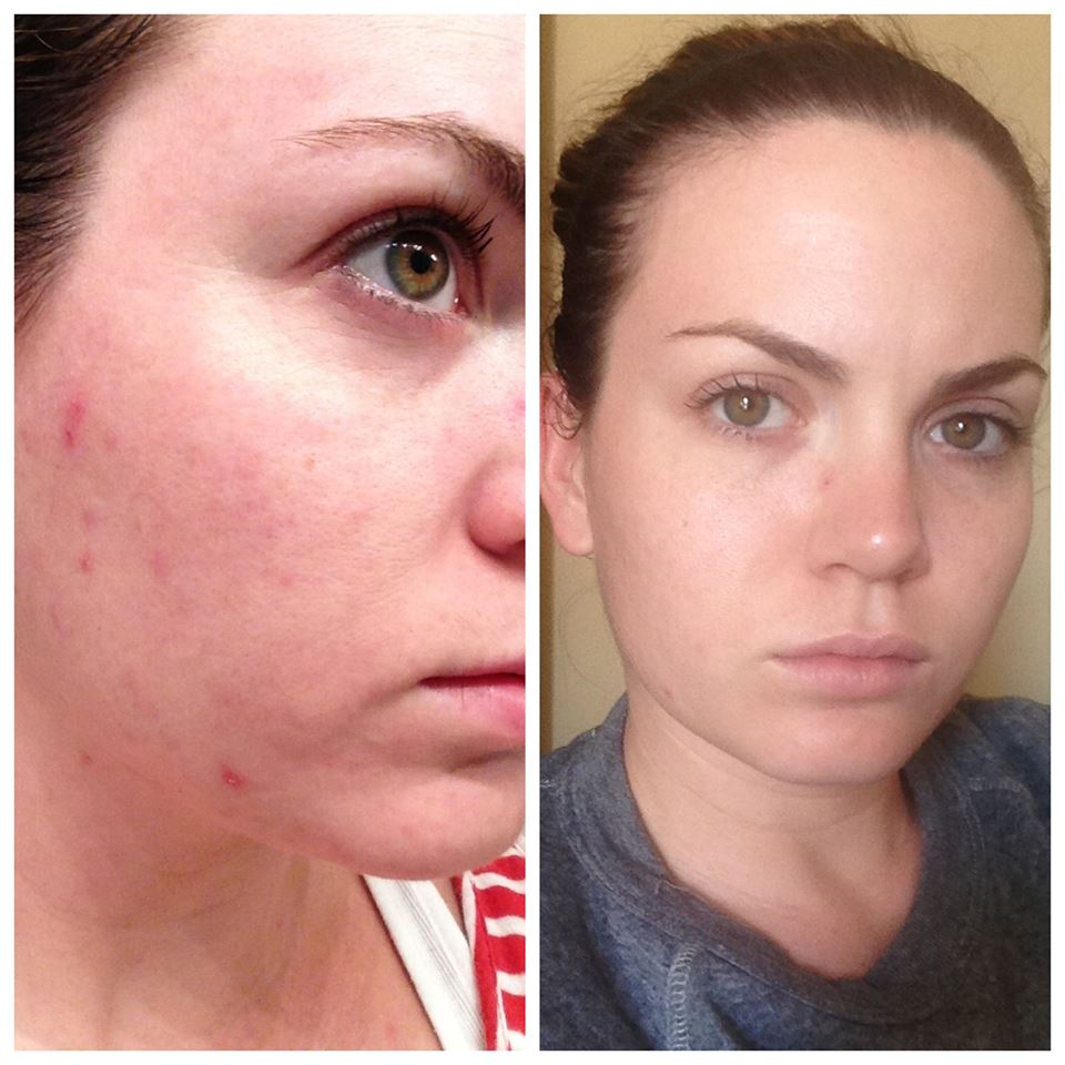 Rodan Fields Before After UnBlemish 1