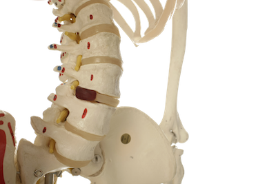 Types of Injuries-FAQ's -