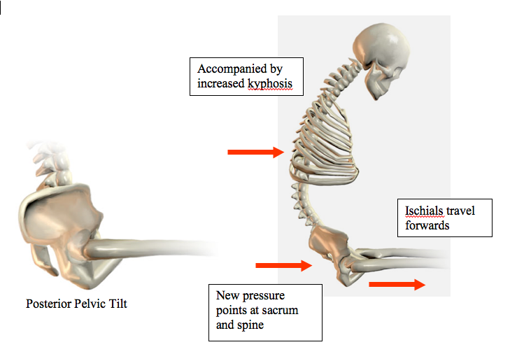 This image from  www.clinical-corner.com  basically just reinforces this idea.  Wow!  That looks uncomfortable...but we all do it sometimes.  It is also possible to be anterior tilting the pelvic too much, though that's more difficult to do while playing an instrument.
