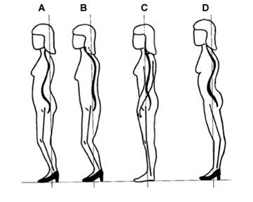 How high heels force a compensation pattern in the body- letter C is the control, and A,B, and D, are a few of the different ways your tissues might adapt.