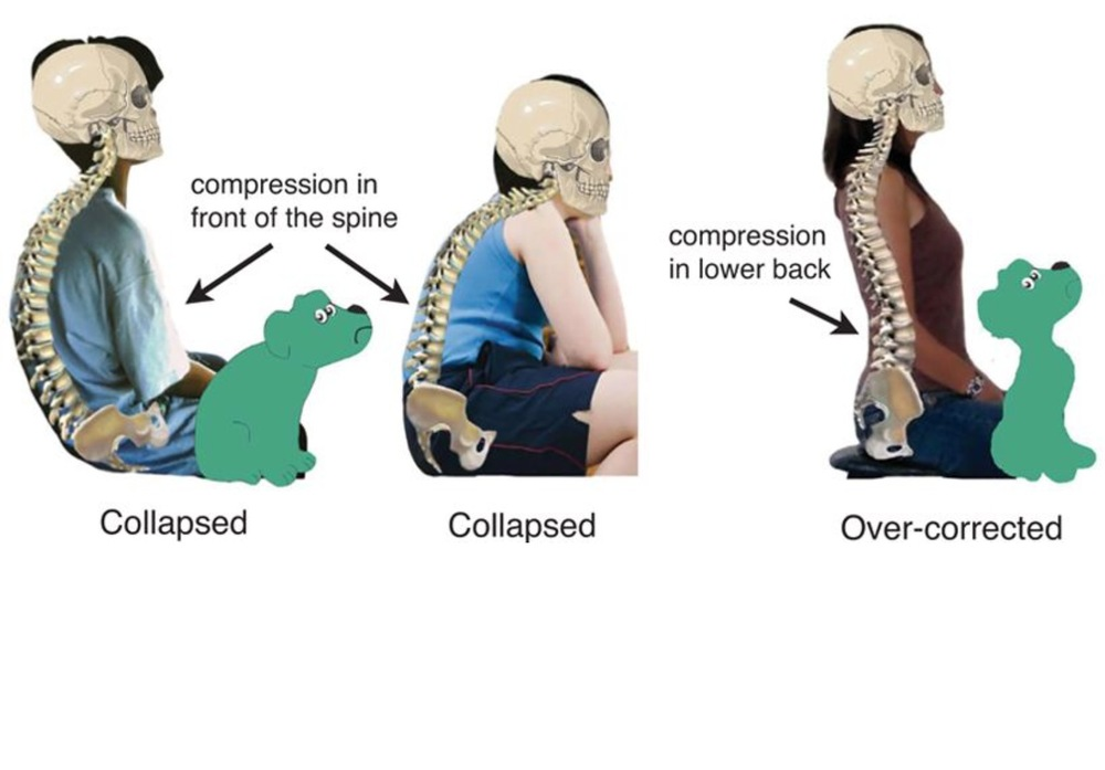 "Notice how the two postures on the left are of an excessive kyphosis and the image on the right is excessive lordosis.  Image from ""Sad Dog, Happy Dog"" by Kathleen Porter."
