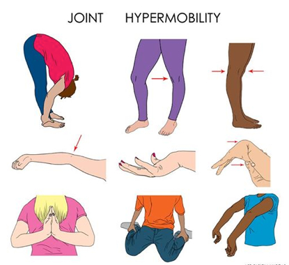 Aside from hypermobile knees and elbows, many people have unstable wrists, fingers, thumbs, and other joints.