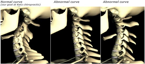 "This digitally rendered image from Katz Chiropractic demonstrates three different neck curve variations- ""normal,"" straight, and reverse."