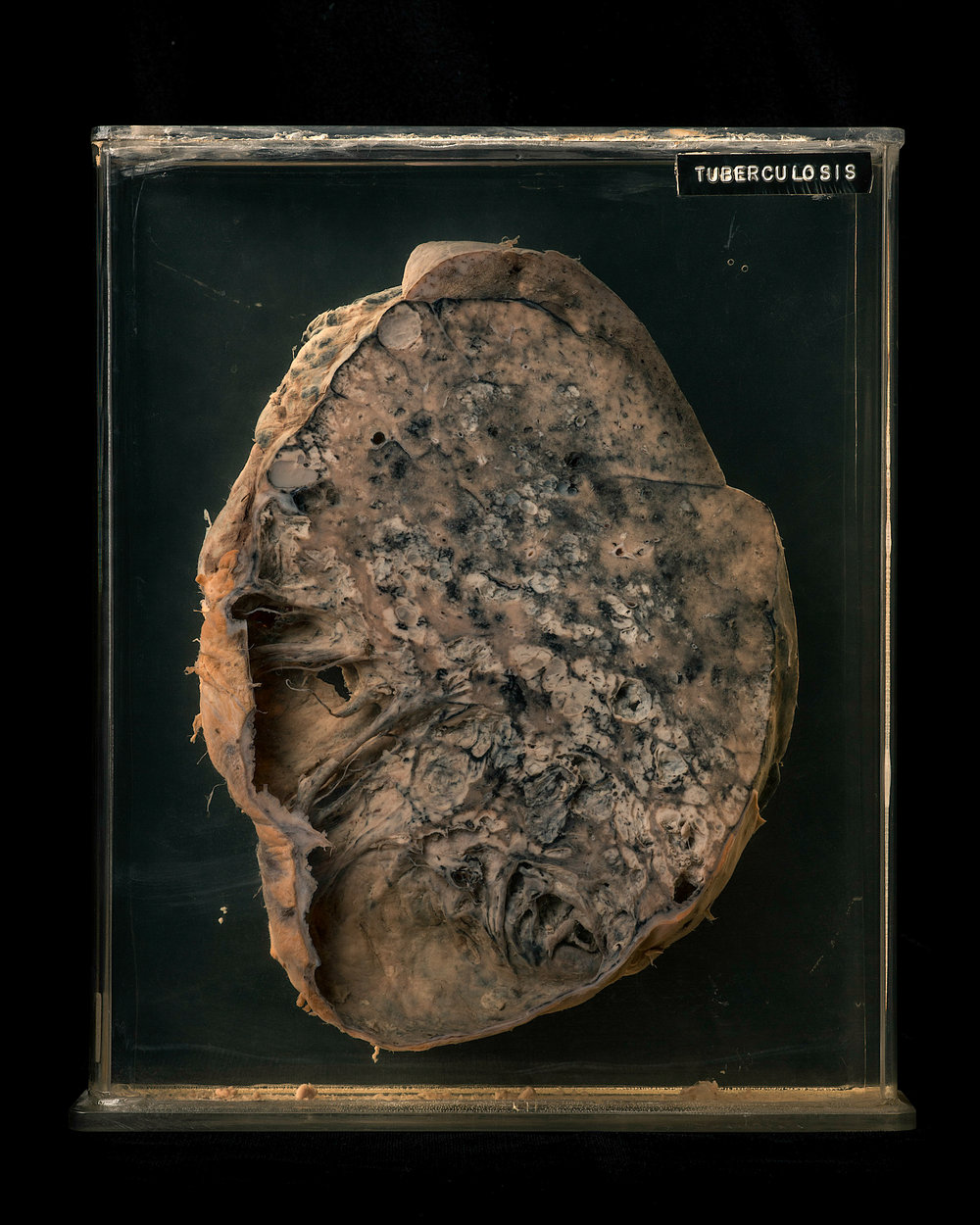 Cross section of TB infected lung - National Institute of Occupational Health 2016