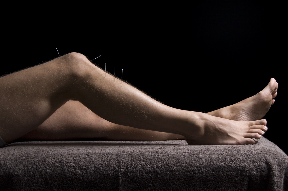 Sports Injuries can be effectively treated with  5 Element Acupuncture
