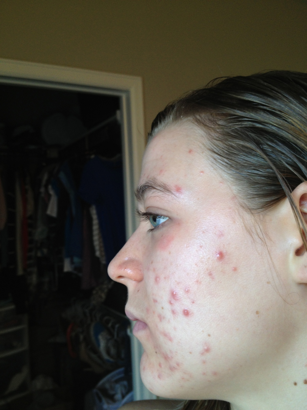 left side: my acne at it's worst (April 2013)