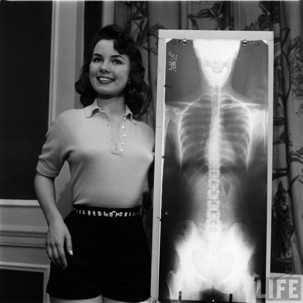 Winner of the Miss Correct Posture contest with her x-ray.