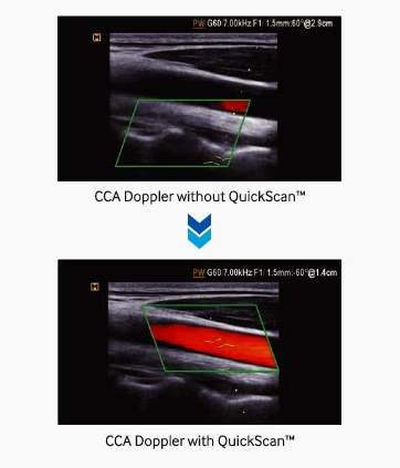 Advanced QuickScan   Advanced QuickScan technology provides intuitive optimization of gray scale and Doppler parameters.  One touch of the QuickScan button elevates efficiency and workflow by adjusting functions including color gain and color box location.