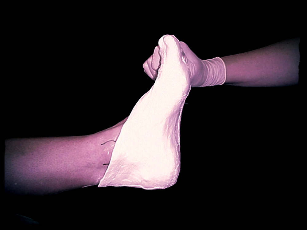 We Will Take An Accurate Casting Of Your Feet And Design Your Orthotics According To Your Foot Profile